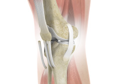 ACL Reconstruction with Patella Tendon Autograft or Allograft