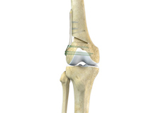 Distal Femoral Osteotomy