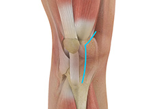 Muscle Sparing Knee Replacement