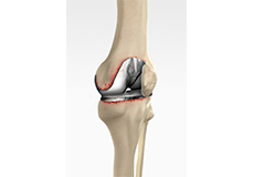 Painful or Failed Total Knee Replacement