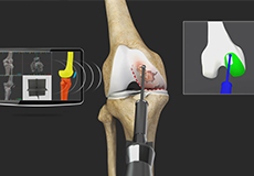 Robotic Unicondylar Knee Replacement